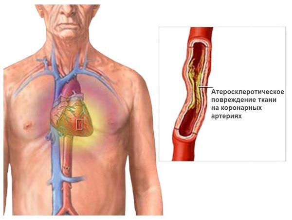 травы лечения холестерина